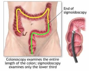 colonoscopy graphic